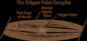 Trigger-point-complex